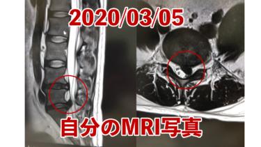 【ヘルニア闘病日記02】椎間板ヘルニアの手術する決意をいたしました。レントゲン写真あり。